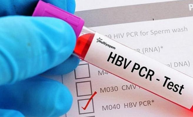 Güney Kıbrıs üzerinden KKTC'ye girişler ve PCR test süresi ile ilgili değişiklik yapıldı