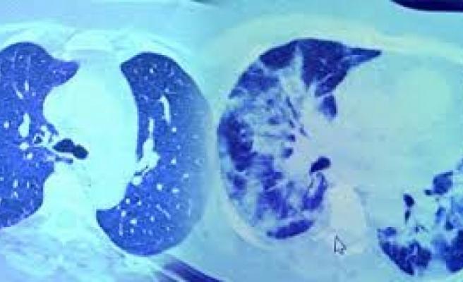 İnanılmaz Fark! Koronavirüse Yakalanıp İlaç Kullanan ve Kullanmayan Bir Hastanın Akciğerleri