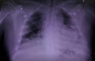 Covid19 Akciğerleri Nasıl değiştiriyor?