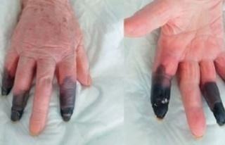 Corona virüs hastası kadın kangren oldu: 3 parmağı...