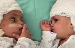 Mucize! Başlarından yapışık olan ikizlerin ilk...
